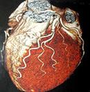 64列CT撮影画像(心臓)
