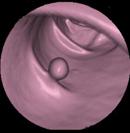 64列CTによるバーチャル大腸内視鏡像